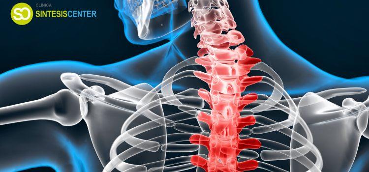 La escoliosis: fisioterapia y osteopatía como tratamiento paliativo.