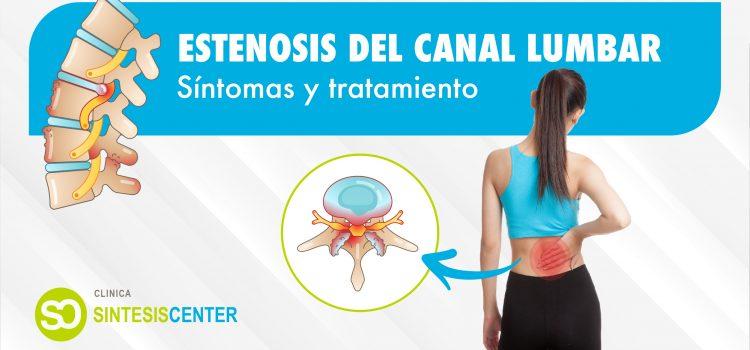 ¿Qué es la estenosis del canal lumbar? Síntomas y tratamiento